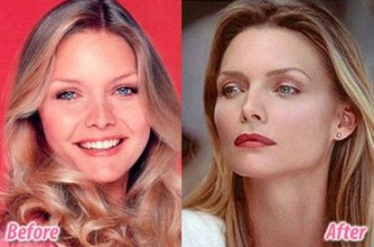 Scary Celebrity Plastic Surgery Before And After