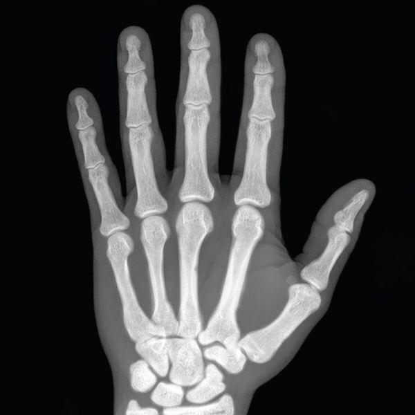b340bbd641a7161bd455508673b7e4fc » X-ray Drawing
