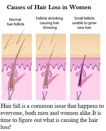 Causes Hair Loss in Women?
