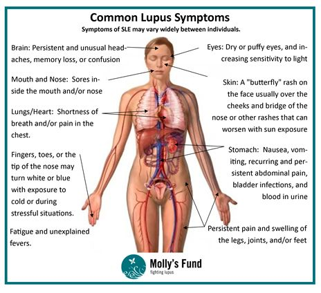 Molly's Fund blog on some common lupus signs and symptoms, click to read more about this topic!