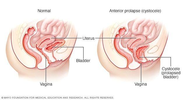 Tilted uterus g spot