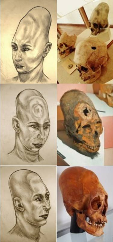 Mark Laplume's artistic interpretations of elongated skulls from Bolivia (top) and Paracas, Peru