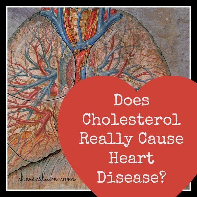 Over 1000 idéer om Heart Disease Causes på Pinterest