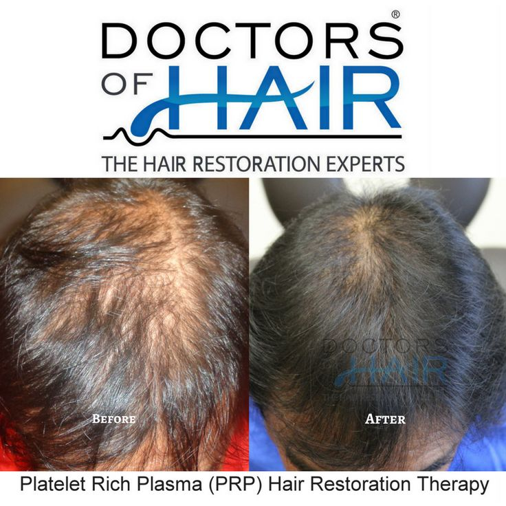 We offer FREE, No Obligation Consultations. Milwaukee, Wisconsin ☎ (414) 877-8773 Las Vegas, Nevada  ☎ (702) 500-0885 . . . . . . . #HairLoss #HairGrowth #HairTransplant #HairRestoration #HairReplacement #Alopecia #ThinningHair #PRP #PlateletRichPlasma #Balding #Men #Women #LasVegas #Vegas #Milwaukee #Hair #LongHair #ThickHair #HairDoctor #HairVitamins #BeforeandAfter #HairStyling #NeoGraft #HairStylists #HairClinic #DoctorsofHair #LoveHair #CurlyHair #StraightHair #AntiAging