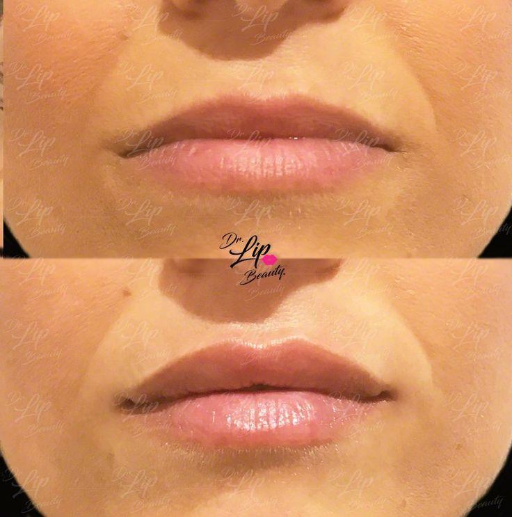 💋TOUCH LIP© | 🖇 Ridefinizione delle LABBRA con FILLER  💎 Aumento più marcato dell'arco di cupido. Aumento curvato delle porzioni laterali del labbro superiore.Leggero Aumento del labbro inferiore centralmente. Top Lift delle commissure. 💎  🎗#LABBRAdiCLASSE🎗 | Filler Labbra Acido Ialuronico | #eleganza #lipclass #labbranaturali #bellezzasicura