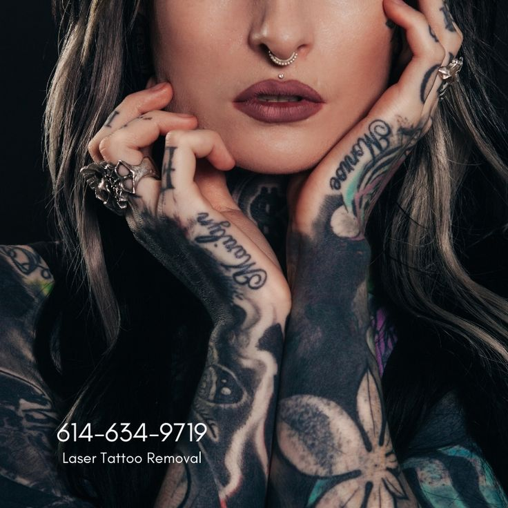 Laser tattoo removal 9373157165 greatskinohio
