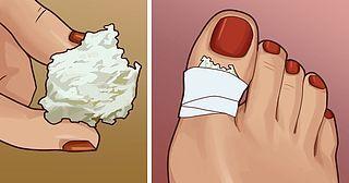 Come sbarazzarsi dei calli in modo naturale (Pane e Circo)