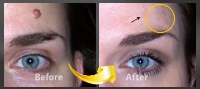 All natural at home treatment for mole removal