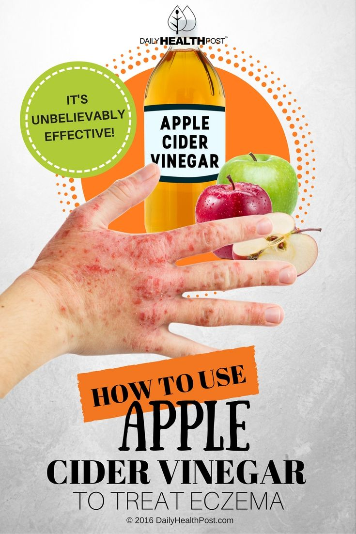 How To Use Apple Cider Vinegar To Treat Eczema (It's Unbelievably Effective!) via @dailyhealthpost | http://dailyhealthpost.com/apple-cider-vinegar-for-eczema/