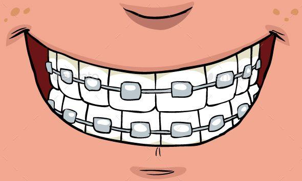 Smile with Braces on Teeth