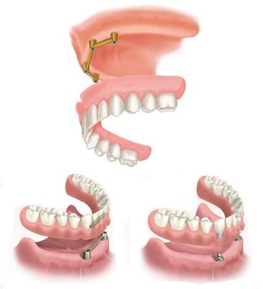 OVER DENTURES    OVER DENTURES ON DENTAL IMPLANTS    1. Diagnostics  Examination and teeth scan is done before the start of the procedure.    2. Implanting procedure  Dental implants are inserted in precise position and order. Position and number are determined by the condition of the jaw bon, usually it is 4 implants in the upper jaw and 2 implants in the lower jaw. After implants insertion temporary dentures are made and they are worn until the permanent over dentures are done.