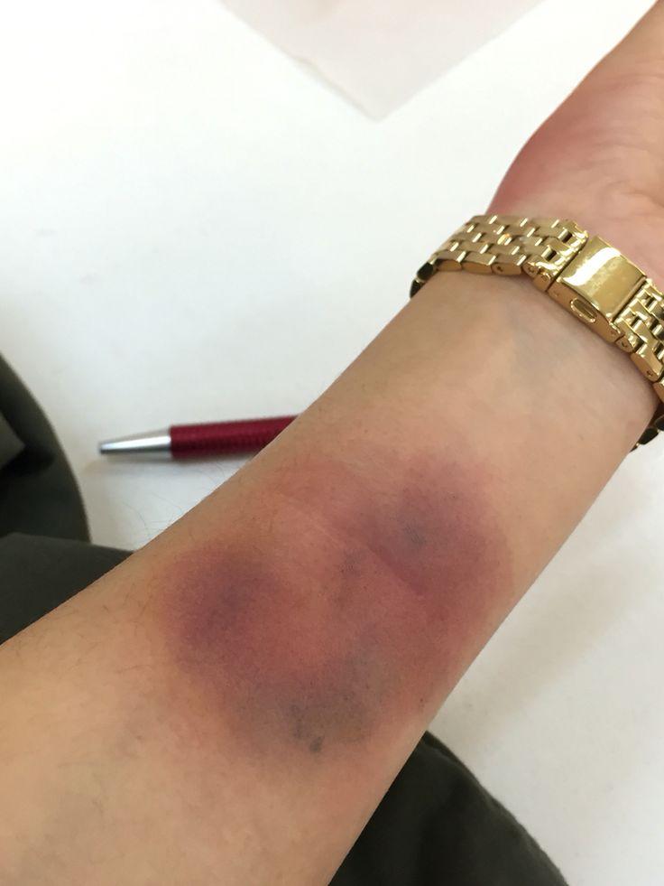Maquillaje moretón. Bruise make up