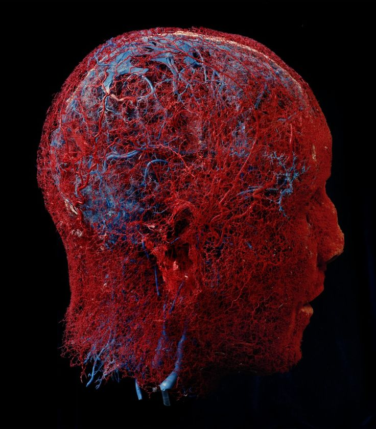 Artery/Blood vessels of the head. This is just Beautiful. Look at how each artery connects to one another.