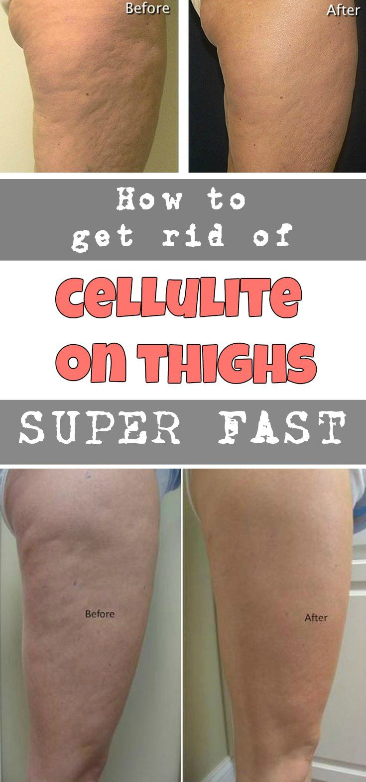 HOW TO GET RID OF CELLULITE ON THIGHS SUPER FAST