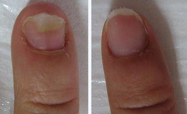 Plíseň nohou a nehtů Jaký druh nebezpečí se skrývá v této nemoci a jak se jí zbavit? Podle statistik trpí téměř jeden z ...