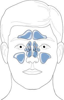Sinus Headache vs #painful #headache #back #of #head http://south-sudan.remmont.com/sinus-headache-vs-painful-headache-back-of-head/  # Sinus Headache vs. Migraine What distinguishes migraine from a sinus-related headache? The initial presentation of sinus infection is so similar to migraine that it is often mistakenly diagnosed and treated like just another headache. However, despite overlapping symptoms, differences between the two entities can be distinguished through a careful…
