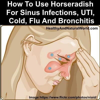 How To Use Horseradish For Sinus Infections, UTI, Cold, Flu And Bronchitis - This super healing plant is extremely effective for clearing sinus infection and bronchitis and It is more effective than antibiotics without any side effect (according to science).