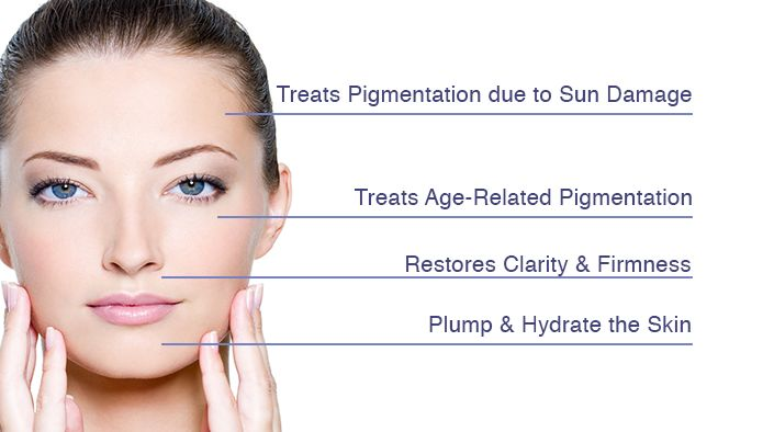 Some #pigmentation #disorders affect just patches of #skin. Others affect your entire body. Dr. Sneh suggests different therapies for the treatment of pigmentation.