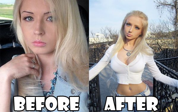 179 best images about Plastic Surgery Gone Wrong on Pinterest  179 best images...