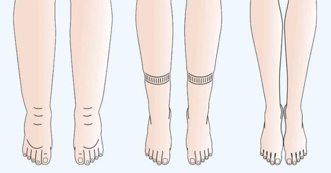 V těle máte litry zadržené vody: Zde je 6 způsobů, jak se otoků zbavíte    3) Nedostatek draslíku Tento důležitý minerál zajišťuje správné fungování tělesných orgánů, tkání i samotných buněk. Jde o elektrolyt, který se stará o rovnováhu tekutin v těle. Konzumace potravin s vysokým obsahem sodíku, nadměrné pocení při cvičení a nedostatečný příjem potravin s obsahem draslíku vede k vyčerpávání jeho zásob. To vše pak přispívá ke vzniku otoků. …