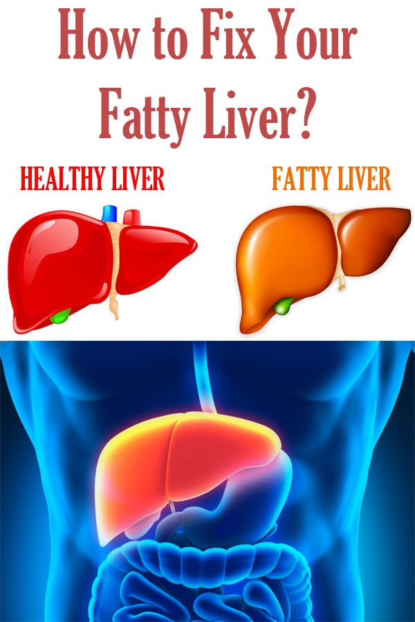 how to fix a fatty liver homeopathic