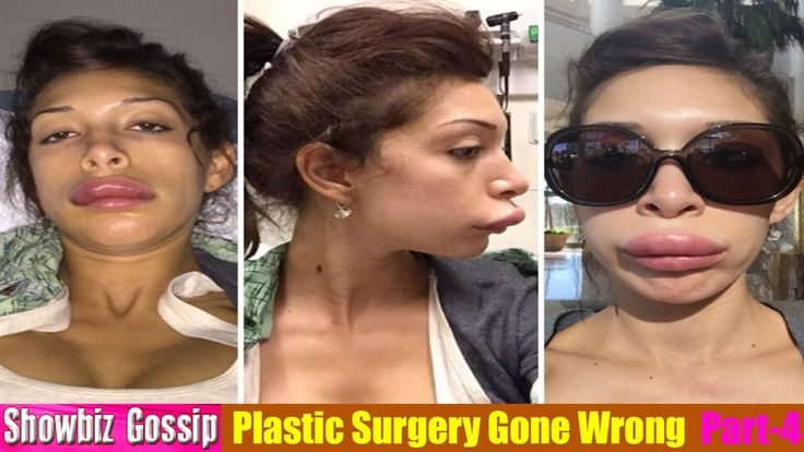 Plastic Surgery Gone Wrong – 53 Worst Celebrity Surgery Gone Wrong Befor...