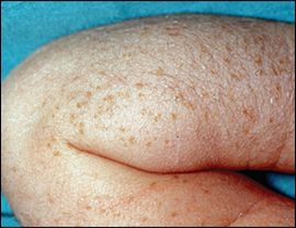 Transient neonatal pustular melanosis results in pigmented macules that gradually fade over several weeks.