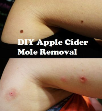 A quick, easy and affordable at home DIY mole removal using apple cider vinegar for only $12 in 5 days.