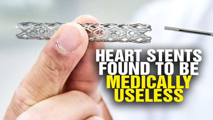Heart stent FAIL: Shocking study shows heart stents are medically useless – NaturalNews.com
