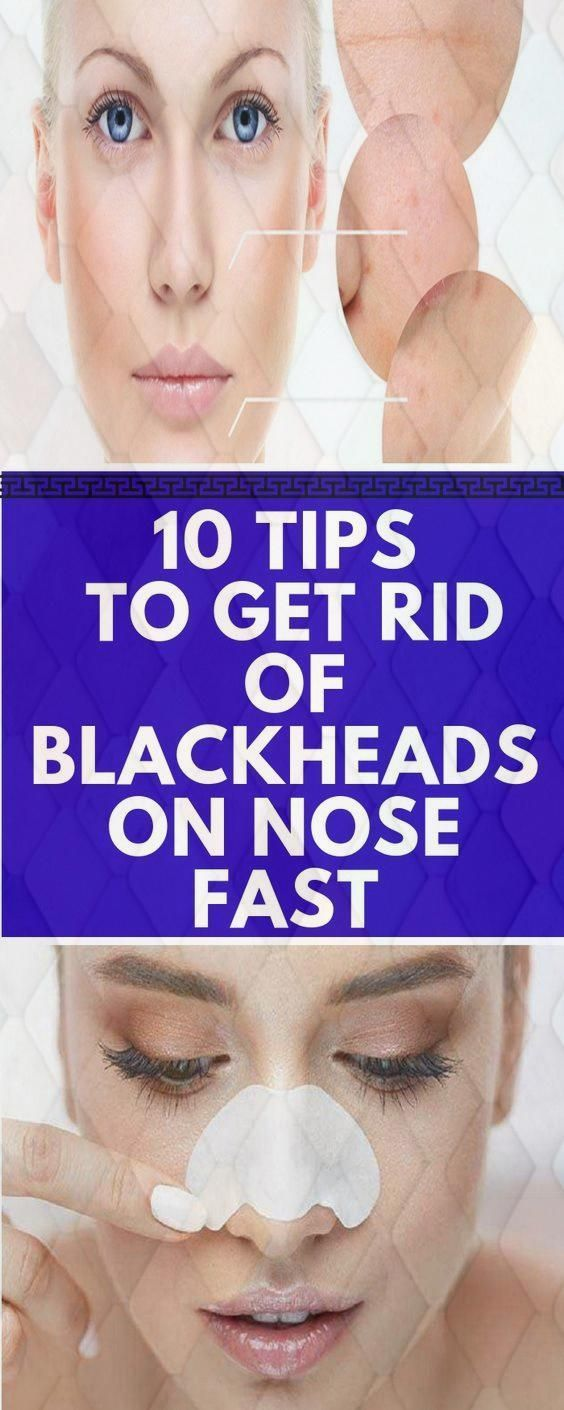 10 Tips To Get Rid Of Blackheads On Nose Fast – YO…