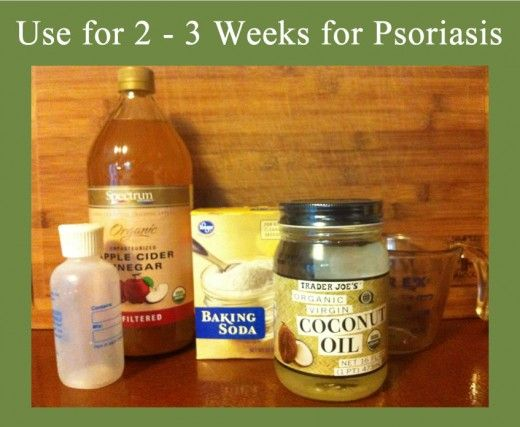best 25+ psoriasis remedies ideas only on pinterest | psoriasis, Skeleton