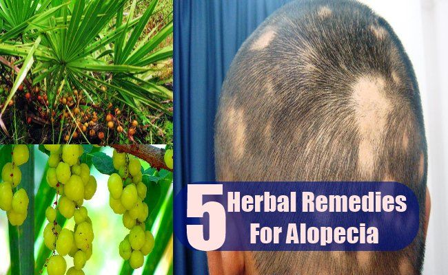 The medical term for hair loss in both men and women is referred as alopecia. As well all know, alopecia results in more than normal hair fall causing patches to appear on the scalp. The condition is both embarrassing as well as depressing and the people suffering from alopecia often suffer from low self esteem and lack self confidence. Alopecia can be treated using certain herbs but one has to be very regular with the treatment since the results take time to show. Best Herbal Remedies For…