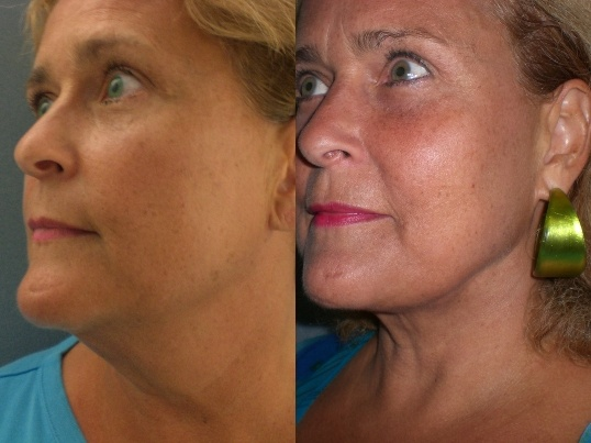 Before after laser lipo on the chin and jowls with the smart before after laser lipo on the chin and jowls with the smart lipo triplex the newest technology for body contouring by cynosure thank you samr ccuart Image collections