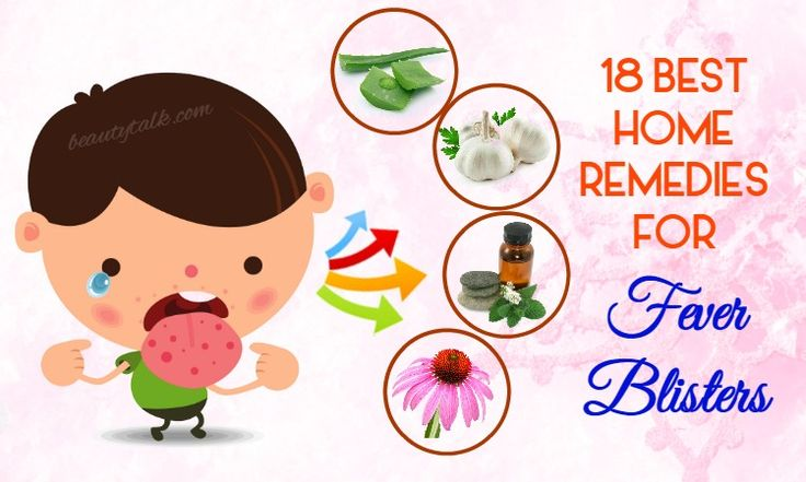 Seeking for home remedies for fever blisters? Here are 18 best methods to get rid of fever blisters at home.