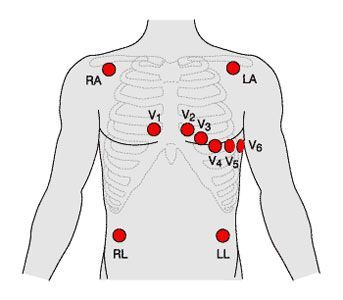 12 Lead ECG placement. | Medic School | Pinterest | Posts and Html