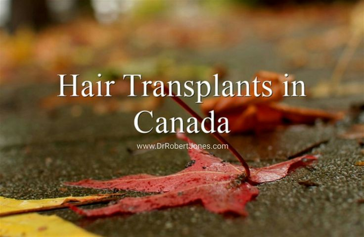 One of the biggest factors that influences the cost of a hair transplant is how many grafts you need or would like - a consultation is required to determine the cost of your hair transplant. Visit www.DrRobertJones.com to book a no obligation consultation 🍁