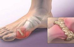 Olvídate de los dolores producidos por el alto nivel de ácido úrico en la sangre