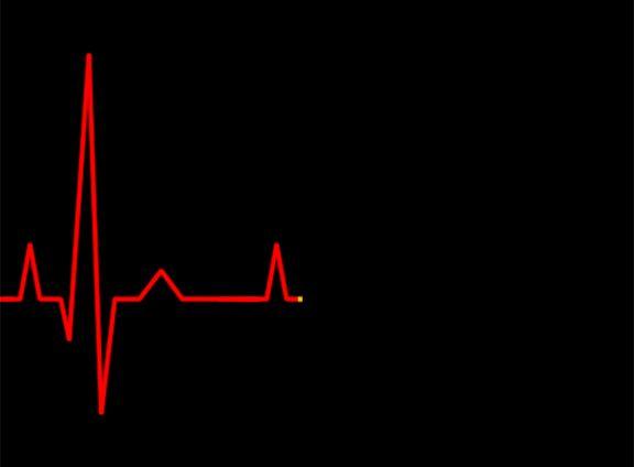 best 25 heartbeat monitor ideas only on pinterest e ink