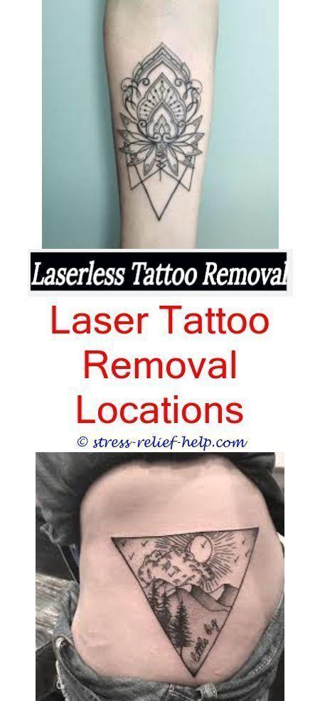 détatouage de grande taille comment enlever les tatouages en ivoire – comment traiter les cicatrices de tatouage …, #diytat …   – Diy Tattoo Permanent
