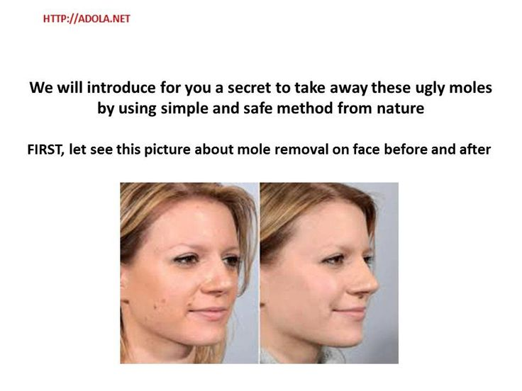 Mole Removal On Face Before and After