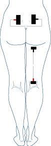 DOLOR DE ESPALDA Y CIÁTICA Lumbago con rhizopathy sacra S1 y se extendió a la derecha. Programa: alta y baja frecuencia de alta frecuencia en la región lumbar y de baja frecuencia en la pierna donde se reduce la sensibilidad.