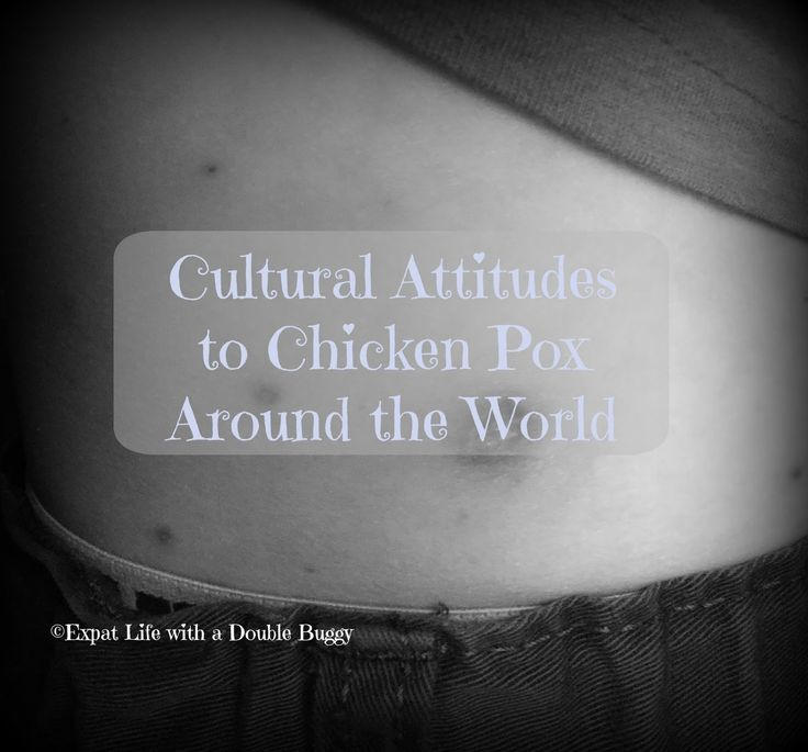 Expat Life With a Double Buggy: Cultural Attitudes to Chicken Pox Around the World