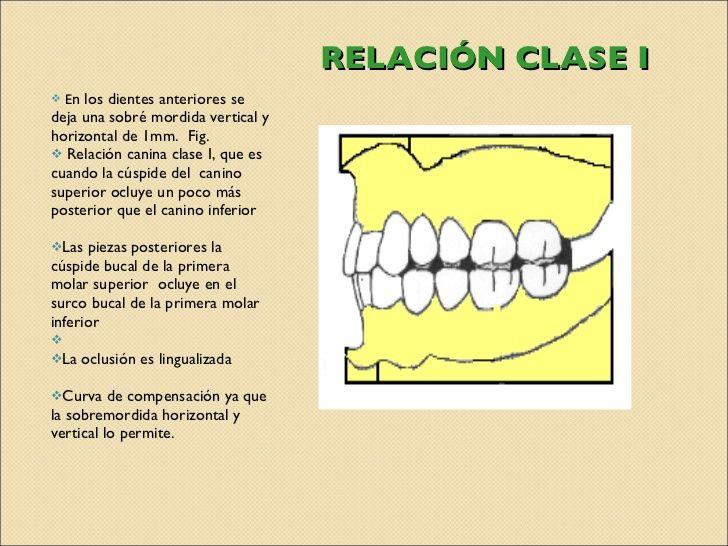 Relación Clase I