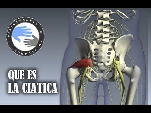 Ciática, que es y como se produce / Fisioterapia a tu alcance - YouTube