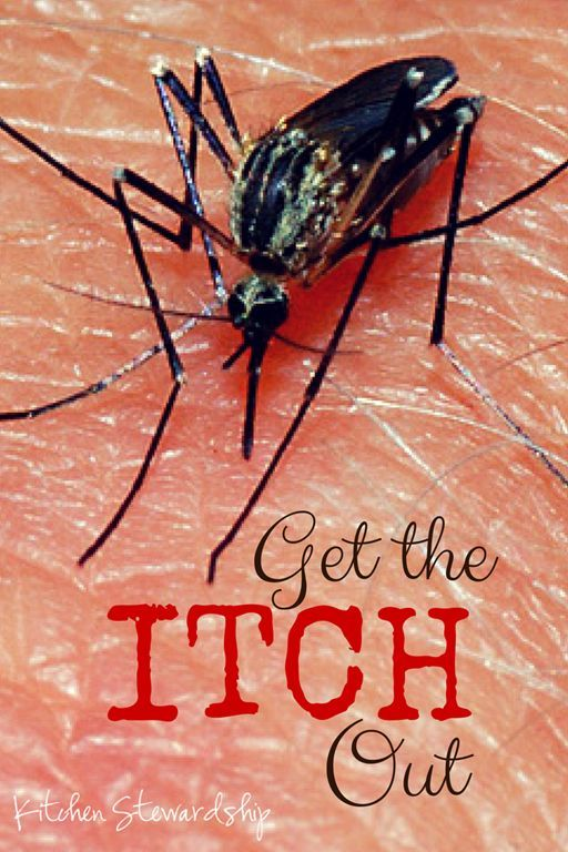 Get rid of the itch in mosquito, chigger, black fly or other insect bites with this huge list of natural home remedies! From grandmother's tricks to herbs to essential oils, this post has it all.