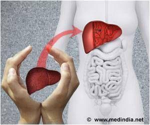 Liver Donation picture.