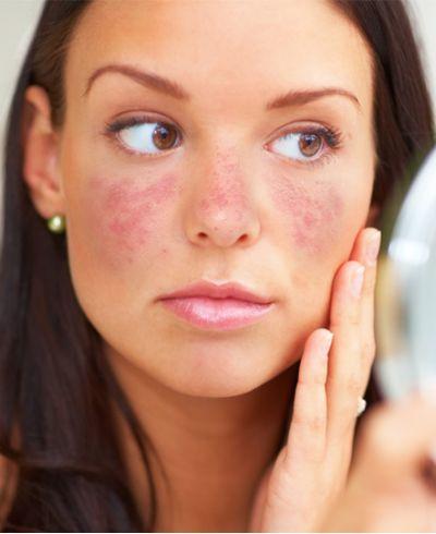 Conheça os diferentes tratamentos para manchas da pele