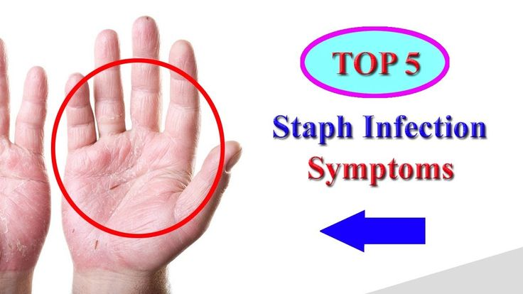 Staph Infection Symptoms – Top 5 Signs of Staph Infection and Staphyloco...