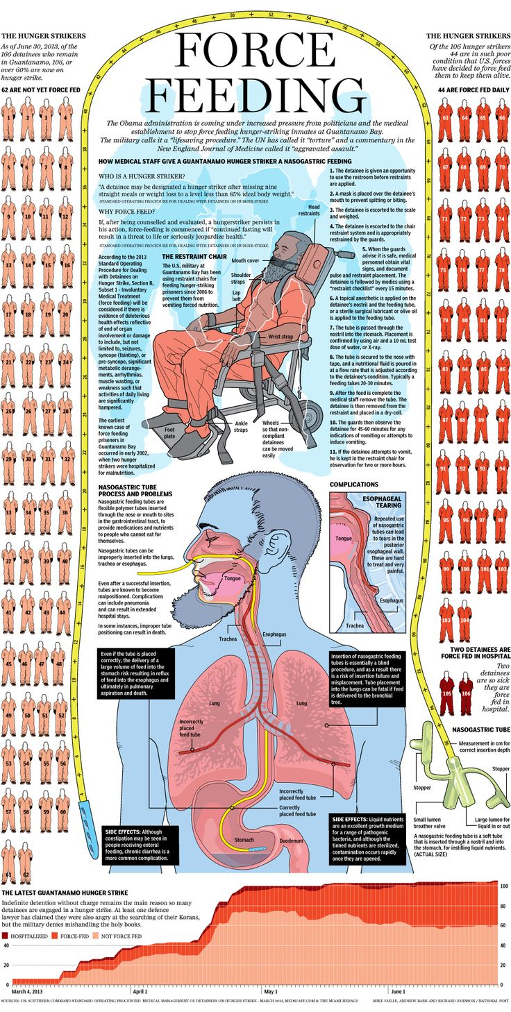 Graphic: The Guantanamo Bay Force Feeding Program