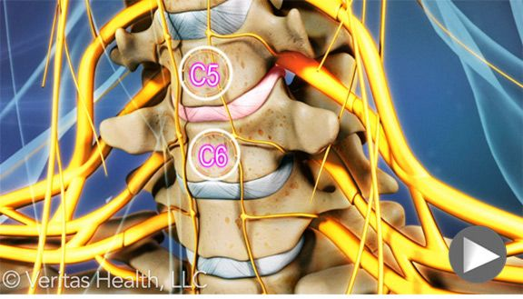 Herniated Discs-Great info on what nerve pathways are injured and what is affected from the herniated disk.